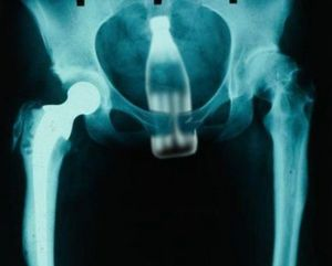 sexy x ray 2